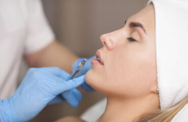 Fillers: 10 Things You Need to Know Before Getting Injected