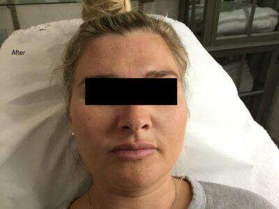 Botox 2 Afer