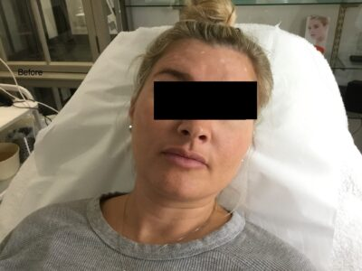 Botox 2 Before