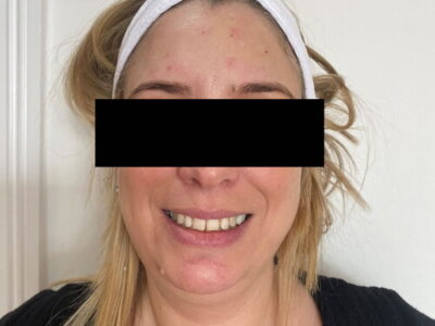 anti wrinkle treatment forehead lines after
