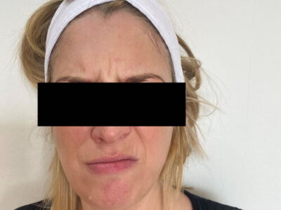 anti wrinkle treatment forehead lines before