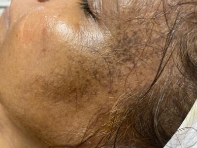severe pigmentation treatment after jpeg