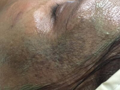 severe pigmentation treatment before